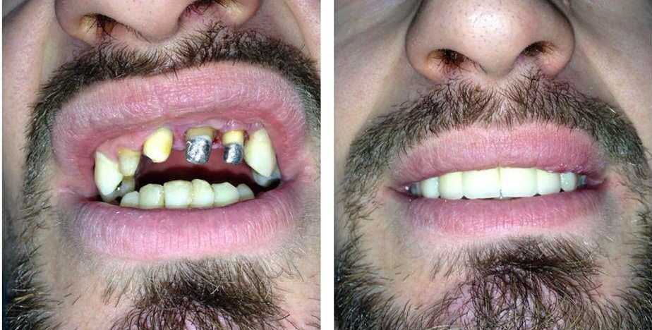 Terapi Dentare