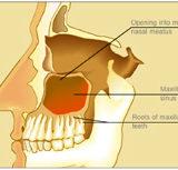 Sinuziti Maksilar Odontogjen